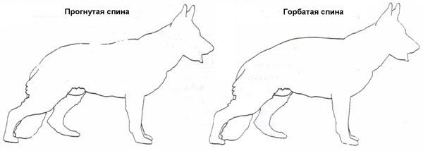 Нарушения формы спины