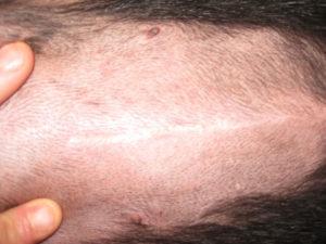 Брюшная полость после косметической операции